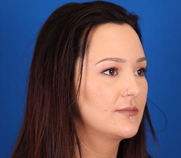 Neck Contouring Gallery - Patient 24801471 - Image 4