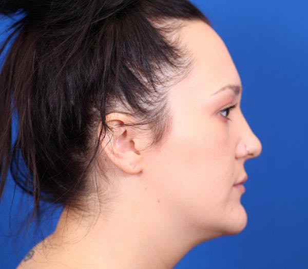 Neck Contouring Gallery - Patient 24801471 - Image 5