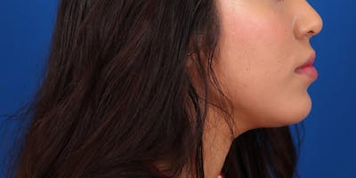 Neck Contouring Gallery - Patient 24801472 - Image 6