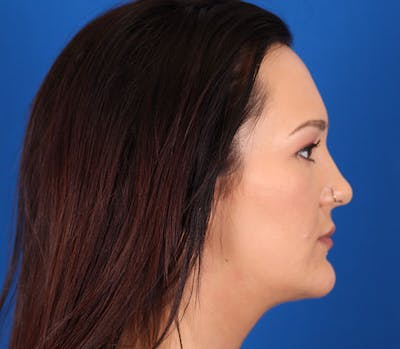 Neck Contouring Gallery - Patient 24801471 - Image 6