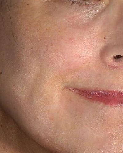 Laser Resurfacing Gallery - Patient 24801490 - Image 2