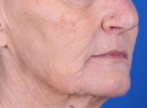 Laser Resurfacing Gallery - Patient 24801492 - Image 4