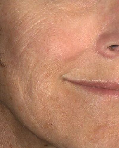 Laser Resurfacing Gallery - Patient 24801490 - Image 1