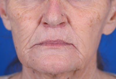 Laser Resurfacing Gallery - Patient 24801492 - Image 2