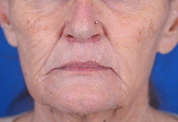 Laser Resurfacing Gallery - Patient 24801492 - Image 2