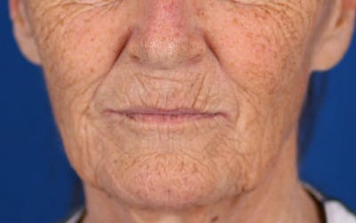 Laser Resurfacing Gallery - Patient 24801492 - Image 1