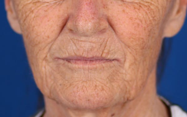 Laser Resurfacing Gallery - Patient 24801492 - Image 1