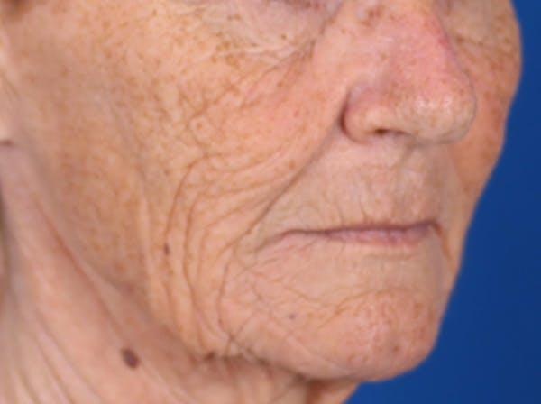 Laser Resurfacing Gallery - Patient 24801492 - Image 3