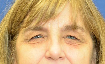 Blepharoplasty Gallery - Patient 24801516 - Image 1