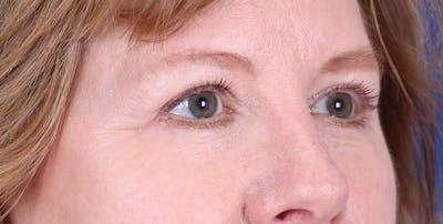 Blepharoplasty Gallery - Patient 24801518 - Image 4