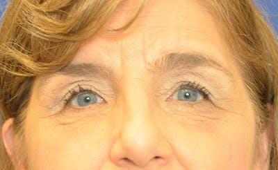 Blepharoplasty Gallery - Patient 24801516 - Image 2