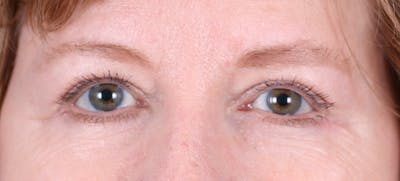 Blepharoplasty Gallery - Patient 24801518 - Image 2