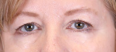 Blepharoplasty Gallery - Patient 24801518 - Image 1