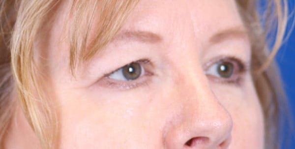 Blepharoplasty Gallery - Patient 24801518 - Image 3