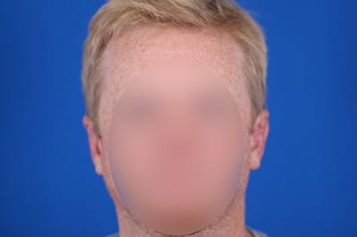 Otoplasty Gallery - Patient 24801672 - Image 2