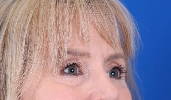 Brow Lift Gallery - Patient 24802613 - Image 6