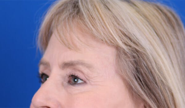 Brow Lift Gallery - Patient 24802613 - Image 4
