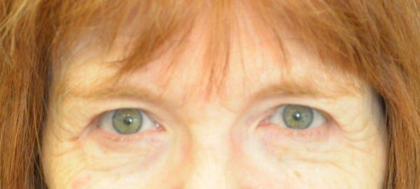 Brow Lift Gallery - Patient 24802614 - Image 1