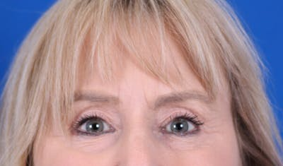Brow Lift Gallery - Patient 24802613 - Image 2