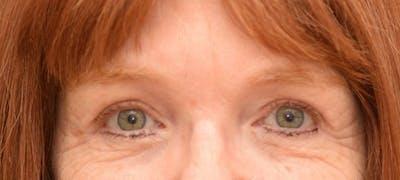 Brow Lift Gallery - Patient 24802614 - Image 2