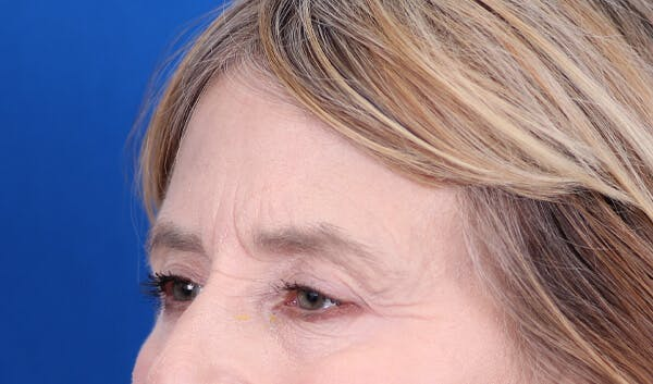 Brow Lift Gallery - Patient 24802613 - Image 3