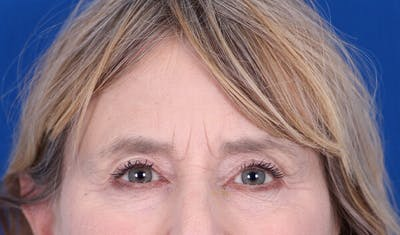 Brow Lift Gallery - Patient 24802613 - Image 1