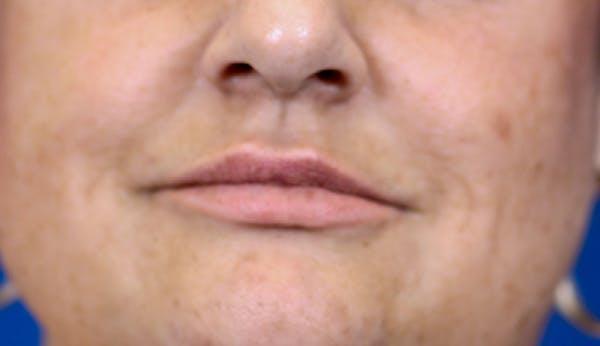 PermaLip (Lip Implants) Gallery - Patient 24802630 - Image 2