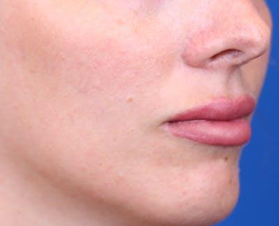 PermaLip (Lip Implants) Gallery - Patient 24802629 - Image 2