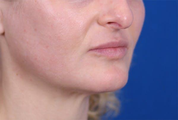 PermaLip (Lip Implants) Gallery - Patient 24802628 - Image 2