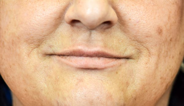 PermaLip (Lip Implants) Gallery - Patient 24802630 - Image 1