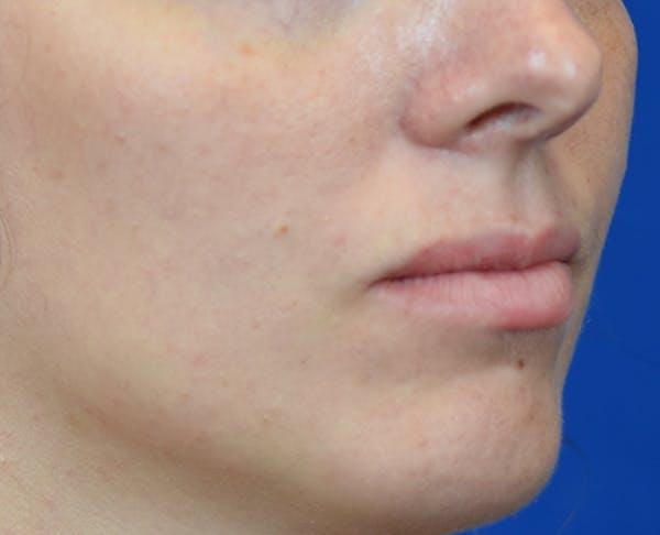 PermaLip (Lip Implants) Gallery - Patient 24802629 - Image 1
