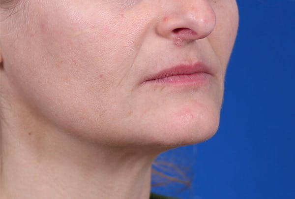 PermaLip (Lip Implants) Gallery - Patient 24802628 - Image 1