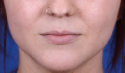 Lip Augmentation Gallery - Patient 24802644 - Image 1