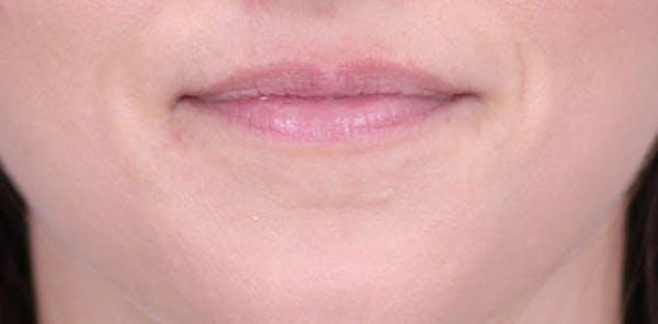 Lip Augmentation Gallery - Patient 24802645 - Image 1