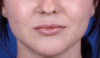 Lip Augmentation Gallery - Patient 24802644 - Image 2