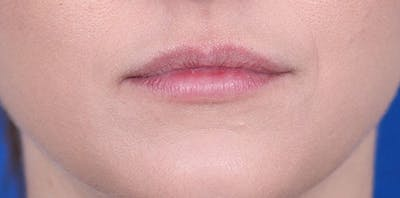 Lip Augmentation Gallery - Patient 24802645 - Image 2