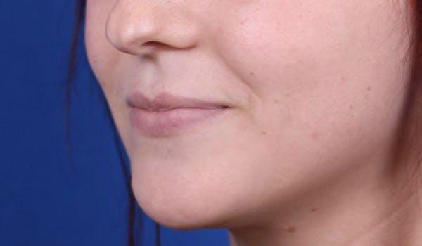 Lip Augmentation Gallery - Patient 24802644 - Image 3