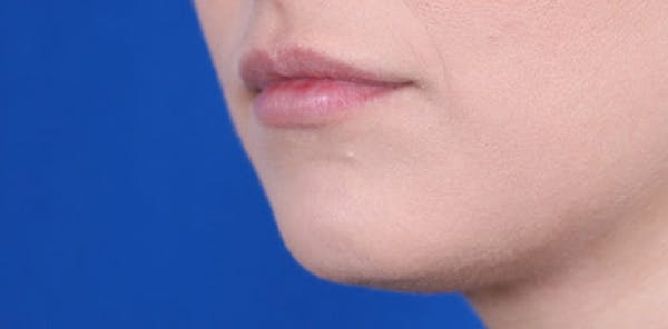Lip Augmentation Gallery - Patient 24802645 - Image 4