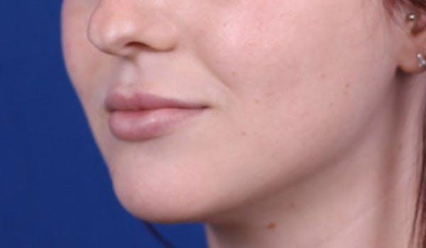 Lip Augmentation Gallery - Patient 24802644 - Image 4