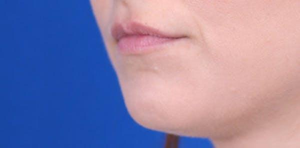 Lip Augmentation Gallery - Patient 24802645 - Image 3