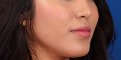 Buccal Fat Removal Gallery - Patient 24802713 - Image 4