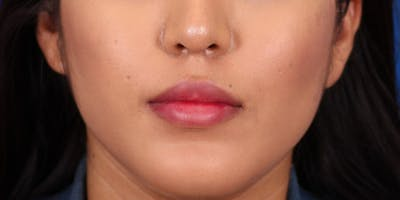 Buccal Fat Removal Gallery - Patient 24802713 - Image 2