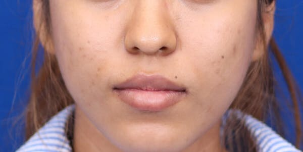 Buccal Fat Removal Gallery - Patient 24802713 - Image 1