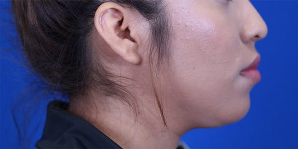 Buccal Fat Removal Gallery - Patient 24802713 - Image 5