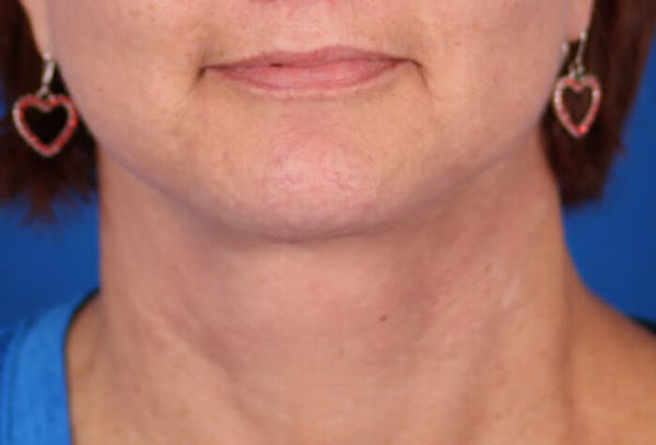 Facelift/Neck Lift Gallery - Patient 24802718 - Image 6