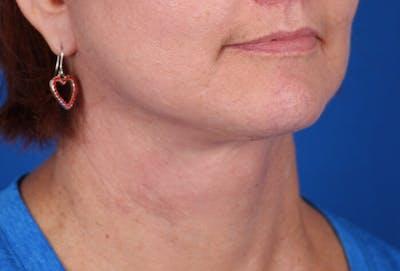 Facelift/Neck Lift Gallery - Patient 24802718 - Image 4