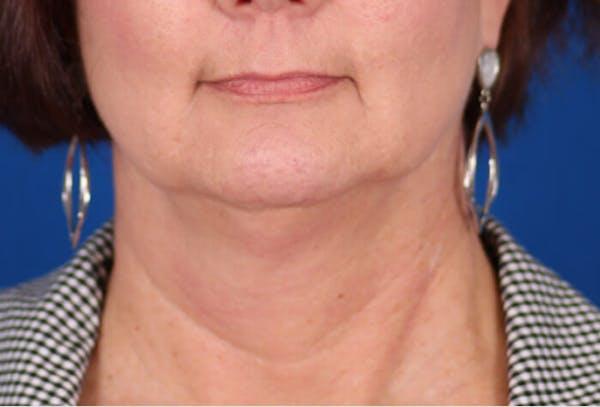 Facelift/Neck Lift Gallery - Patient 24802718 - Image 5