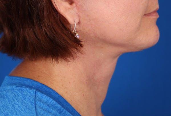 Facelift/Neck Lift Gallery - Patient 24802718 - Image 2