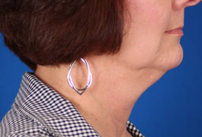 Facelift/Neck Lift Gallery - Patient 24802718 - Image 1