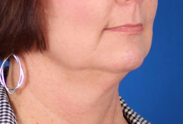 Facelift/Neck Lift Gallery - Patient 24802718 - Image 3